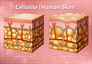 Celulitis en piel