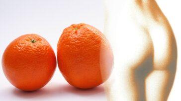 ¿Celulitis y piel de naranja? Los mejores alimentos para combatirlo